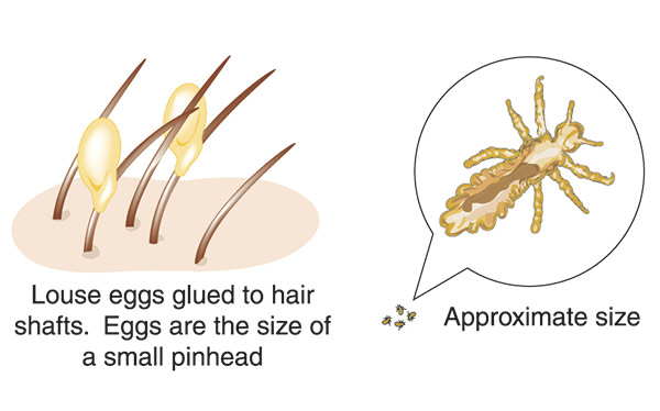 What Do Lice Look Like?