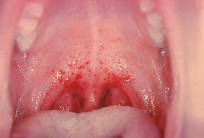 Pictures of soar throat symptoms, erotic organic sex stories