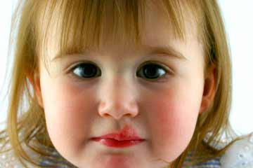 Cold Sores In Toddlers New Kids Center