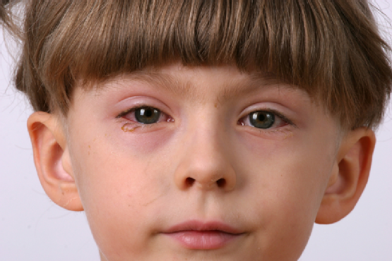 Eye Infection Types Symptoms Amp Treatments In Babies New