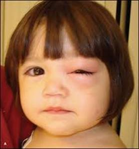 You Should Consult A Doctor Immediately If The Babys Eyes Are Red And Swollen