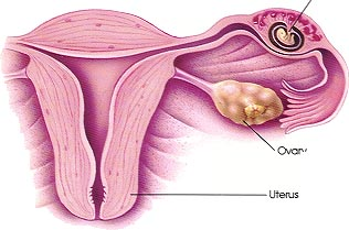 What Does an Ectopic Pregnancy Feel Like? - New Kids Center
