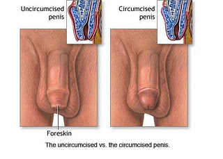 circumcised and uncircumcised penis