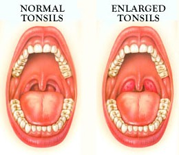 Cause of enlarged tonsils in adult