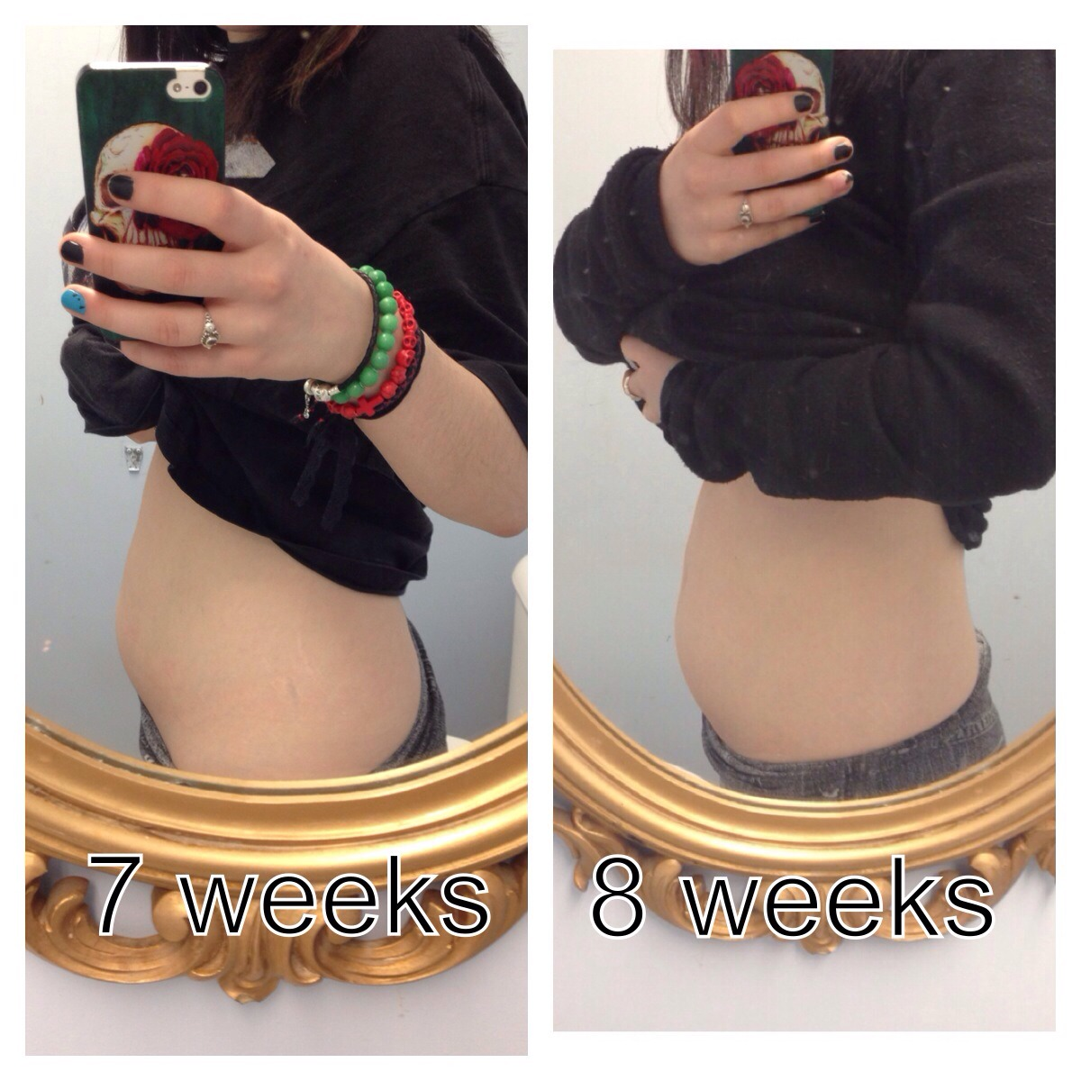 8 Weeks Pregnant, Showing Already! - New Kids Center